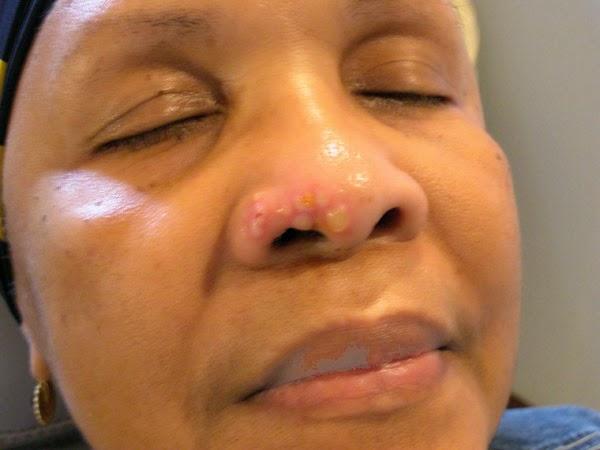 Чем вылечить болячки в носу в домашних условиях 465