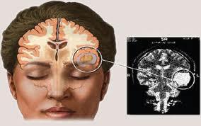 Gejala Penyakit Kanker Otak Stadium 2