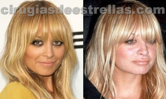 Nicole Richie antes y después