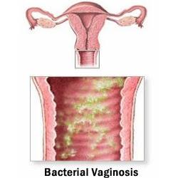 vellai paduthal, white discharge vagina, watery in vagina, pundaiyil thanni varuthu,