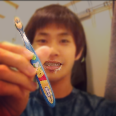 Day 32 post double jaw (orthognathic) surgery using a kid's toothbrush