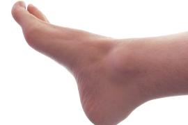 Informatii medicale despre epidermofitia plantara