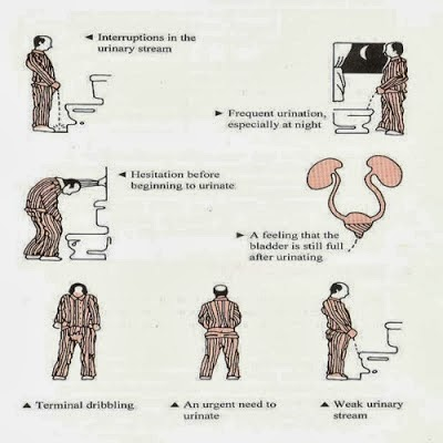 Prostate gland enlargement symptoms