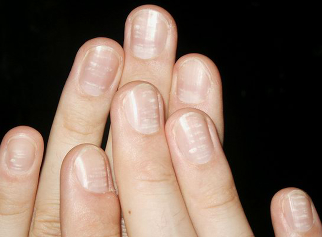 How To Apply Makeup: How To Get Rid Of White Spots On Nails
