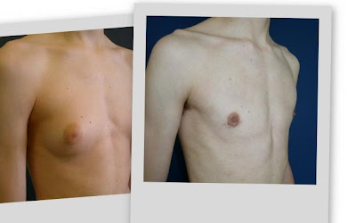 Cómo eliminar los senos del hombre y la grasa en el