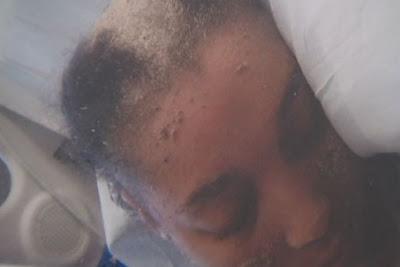mujer le crecen uñas en la cabeza en vez de pelos