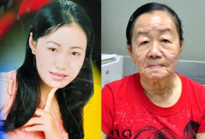 Nguyen Thi Phuong - Wanita muda secara misteri menjadi wanita tua dalam satu malam