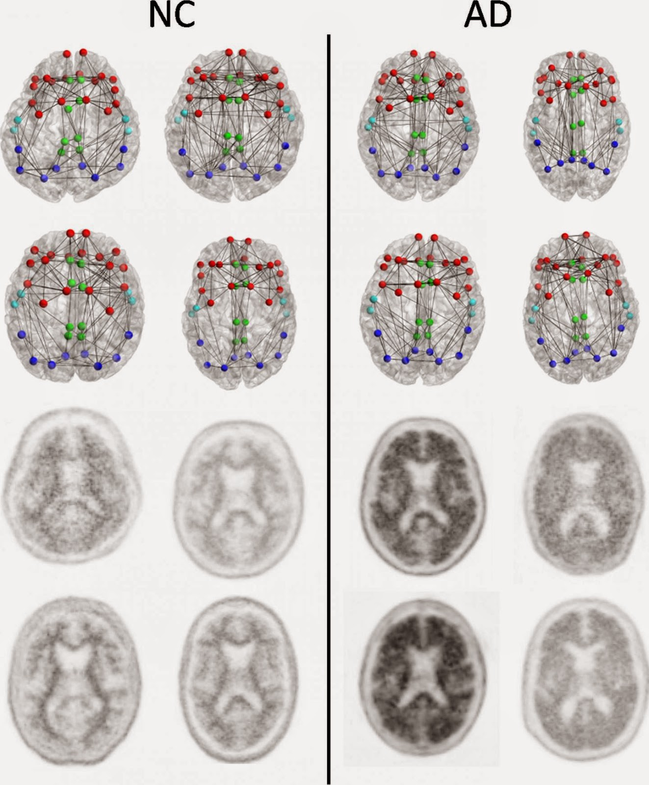 Imaging Shows Brain Connection Breakdown In Early Alzheimer's Disease