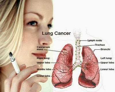 Symptoms of lung cancer pictures