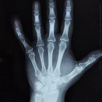 rimedi contro l'osteoporosi