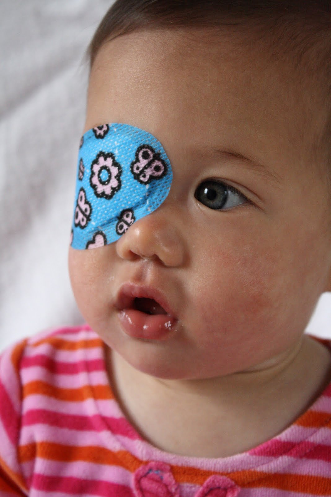When does the strabismus in newborns and whether to treat it 32