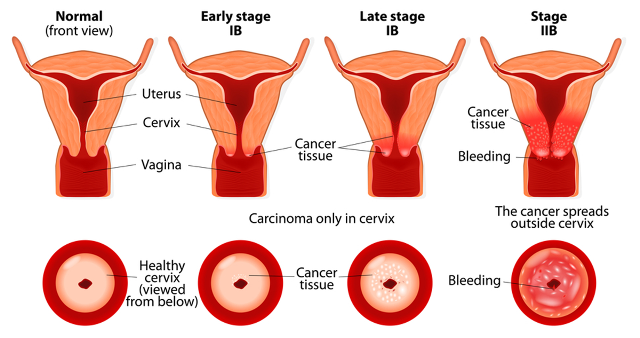 cervical cancer signs nevr to ignore