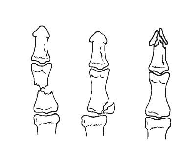 Tipos de fracturas de pulgar