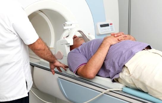 Ciri-Ciri Dan Cara Mendeteksi Gejala Kanker Otak