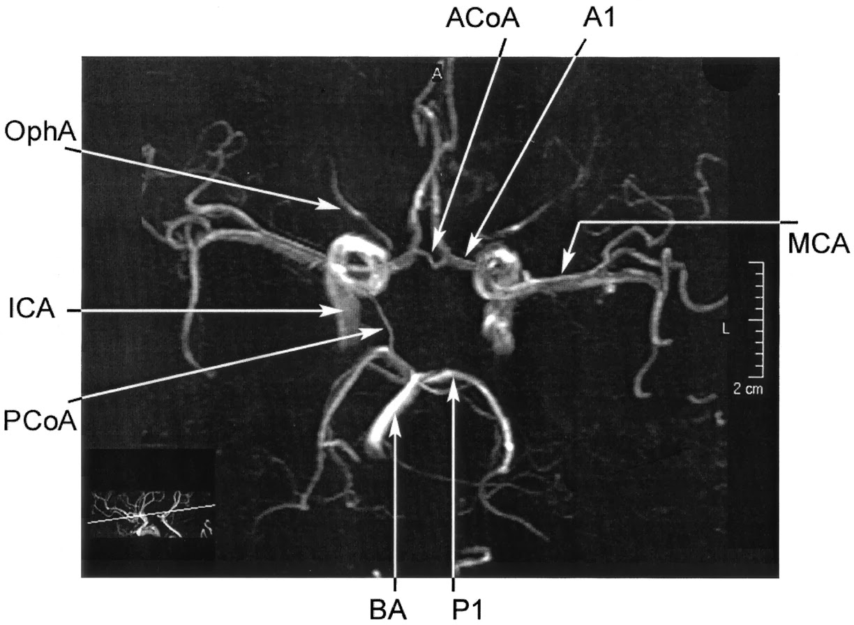 MRA Brain anatomy   Radiology Anatomy Images