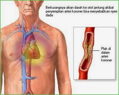penyakit jantung kardiovaskular