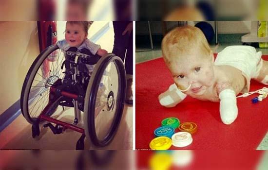 Kerusi Roda Khas yang Dikawal Guna Badan Untuk Bayi Tiada Tangan, Kaki dan Hidung