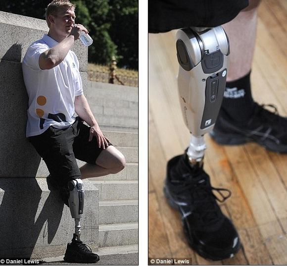 Kaki palsu Power Knee dari Össur