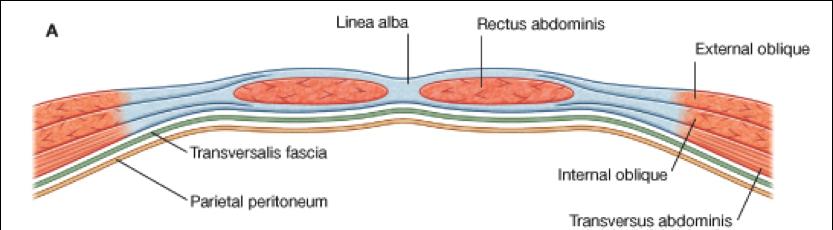 Internos de cirugia fsfb hernias de la pared abdominal - Quitar gotele de la pared ...