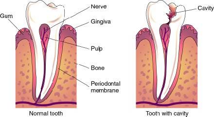 Cavities caused heart disease heart disease dentist dental Cavities