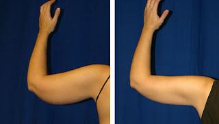 como puedo eliminar el exceso de grasa y piel flacidez en mis brazos en guadalajara mexico