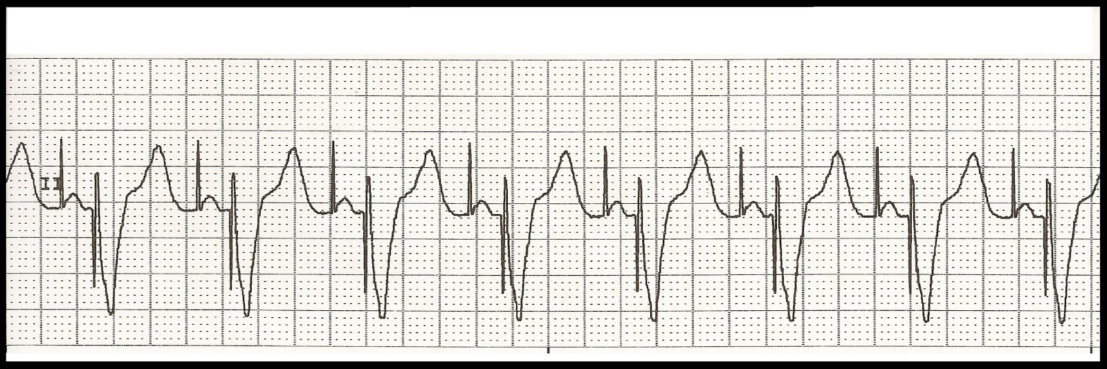 Pacemaker ecg strips ⭐ Float Nurse: