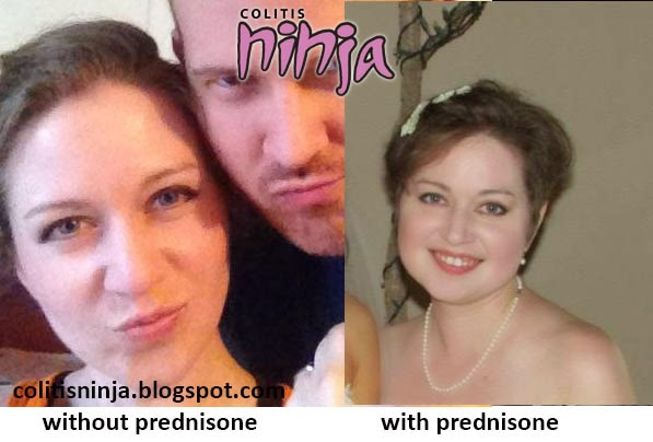 prednisone side effects and hair loss