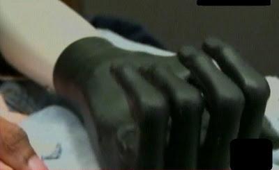 mano ortopédica para un joven que cortó su mano con una sierra en la navidad
