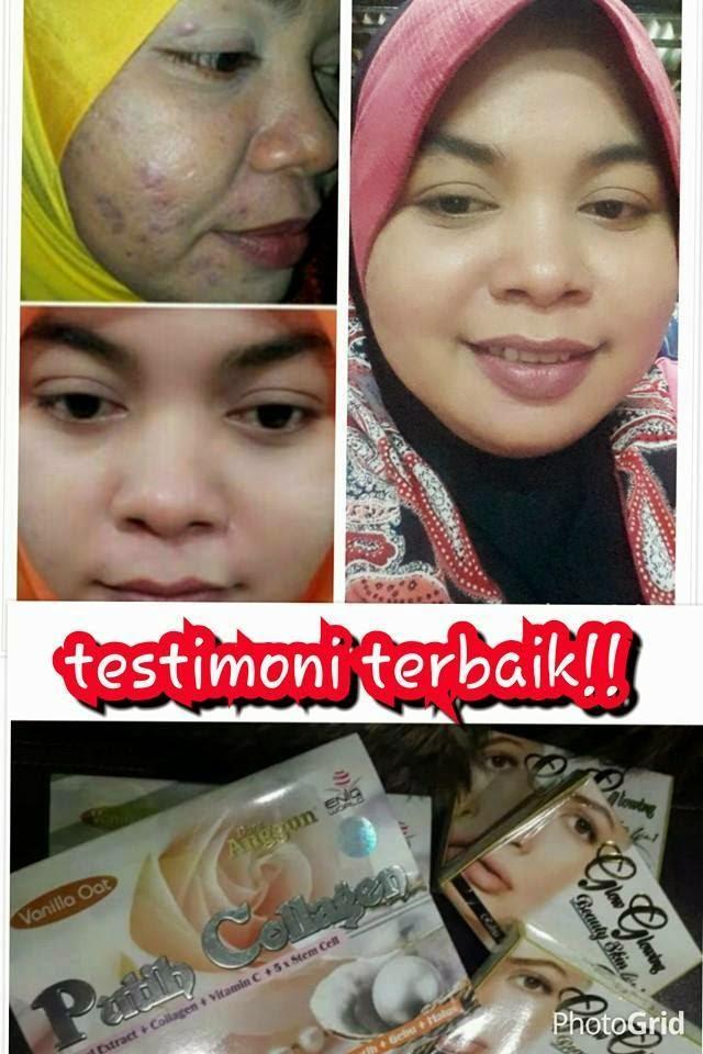 Testimoni Dara Collagen Dara Anggun Putih Collagen