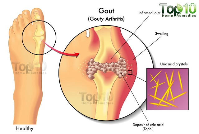 gout and joint pain and uric acid
