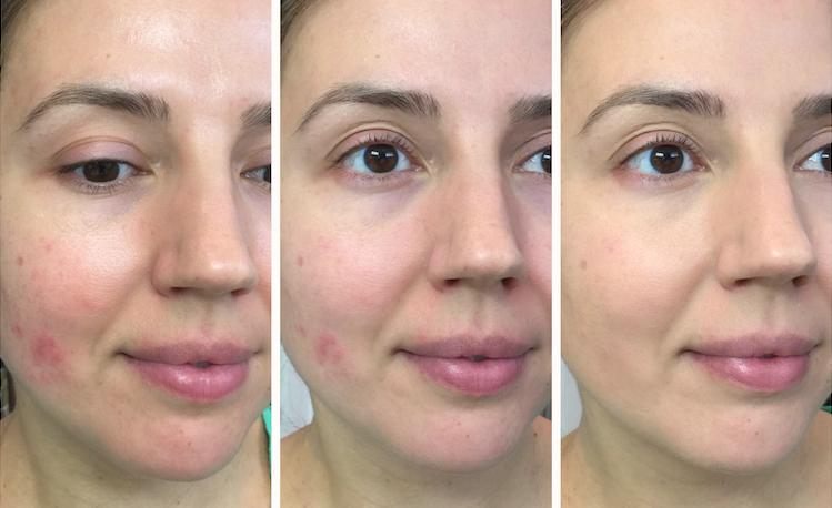 Makeup forever green primer review