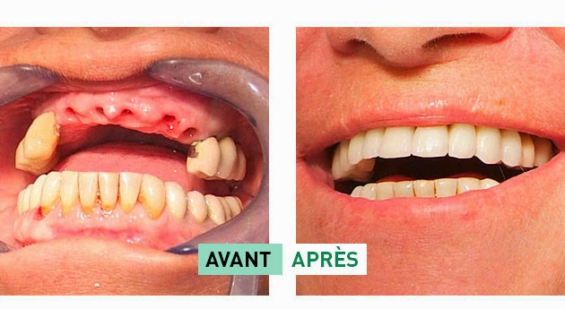 Implant : Avant et après