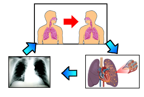 Knowledge deficit nursing diagnosis pneumonia
