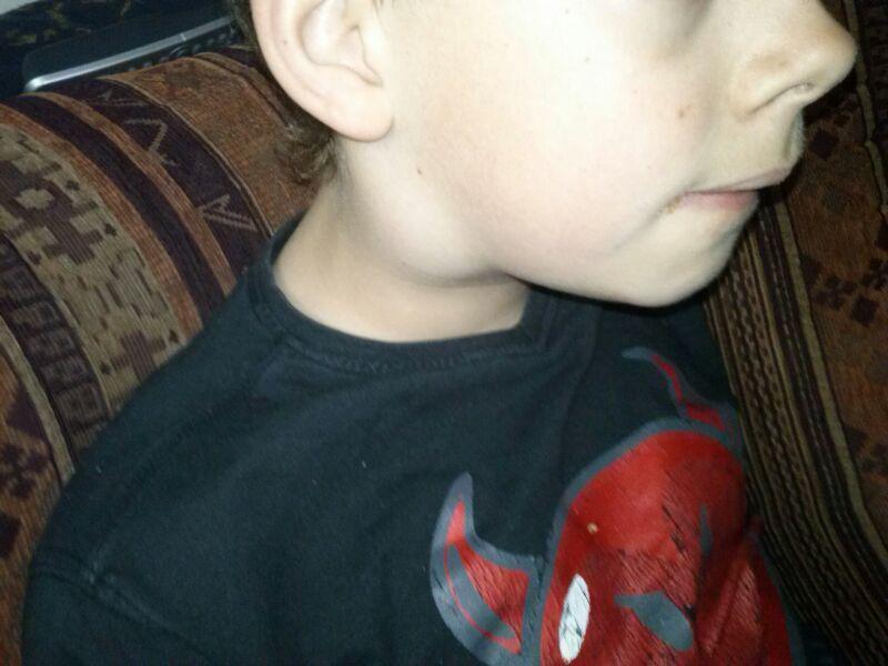 opgezette klieren hals kind