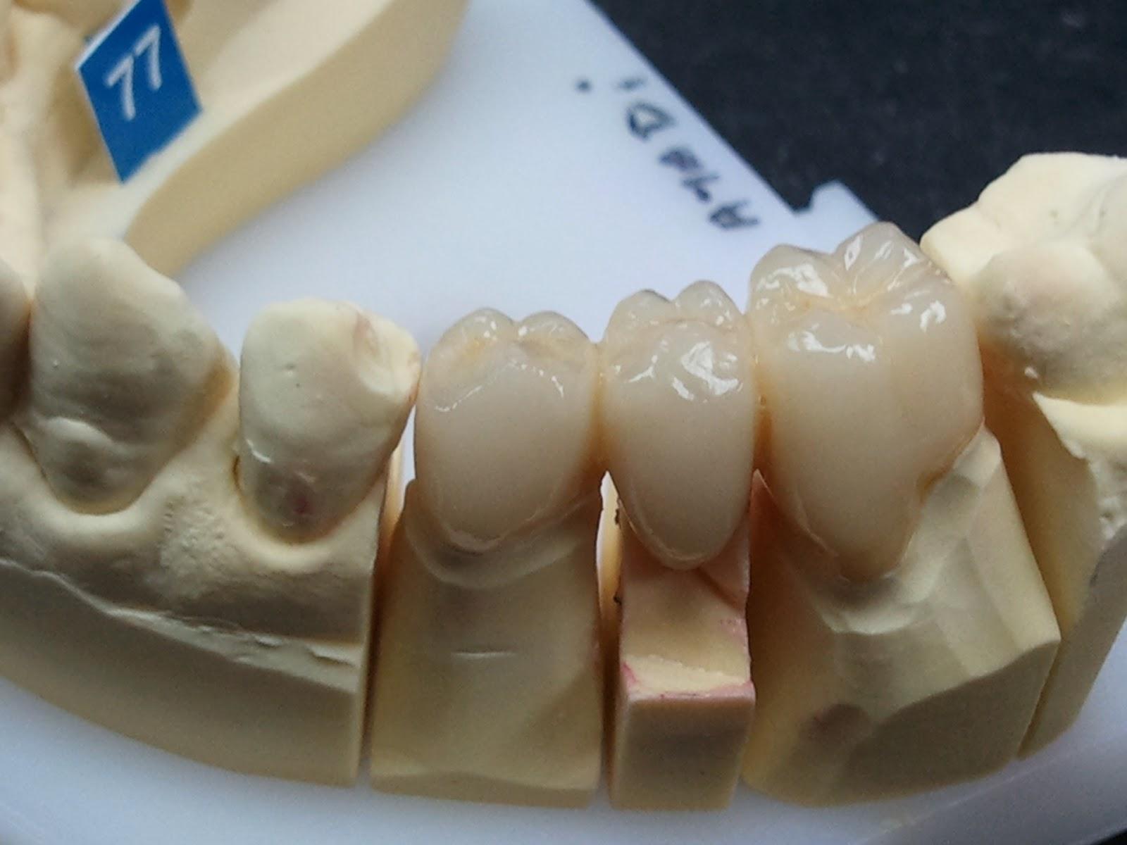 blog prothesiste dentaire Le laboratoire vient d'acquérir d'une fraiseuse dentaire roland dwx-51d  une  des plus  sur le blog des prothésiste dentaire dans le site aller aux fraises.