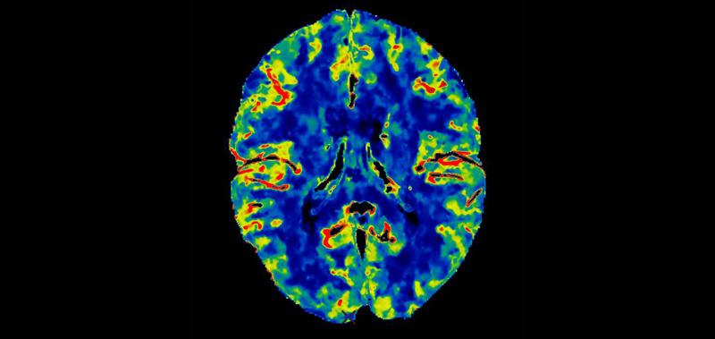 Neural Imaging May Help Predict Future Behavior
