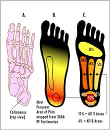 acido urico alto bicarbonato remedios para acido urico colesterol y trigliceridos fotos acido urico en los pies