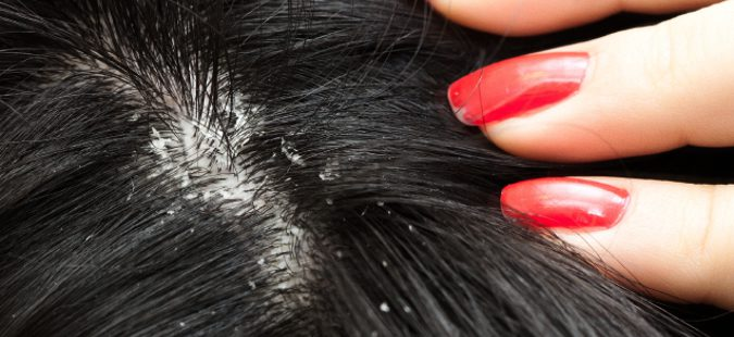 Los óleos etéricos para la humectación de los cabello