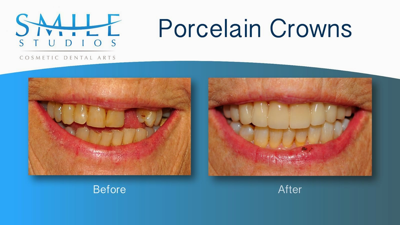 Porcelain Crowns / Bridge
