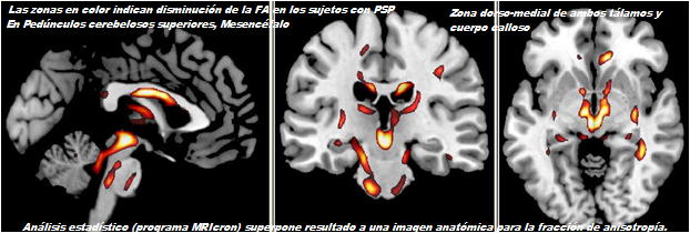NeuroAnatomía Dr. William Ganem: Parálisis supranuclear progresiva ...
