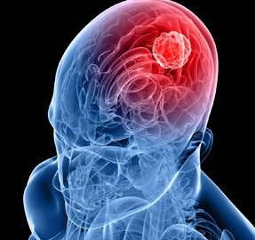 4 Gejala Kanker Otak yang Sering Diremehkan