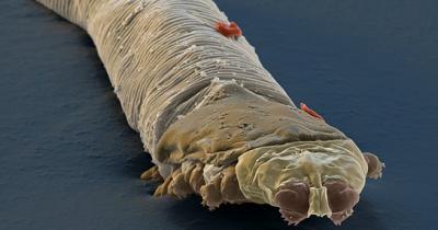 Kutu demodex di wajah dan folikel rambut