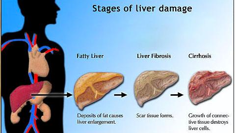 vitamin untuk fatty liver hati berlemak