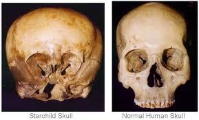 THE STARCHILD SKULL, IS IT HUMAN?