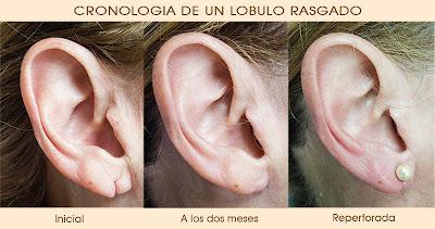 reparación de lobulo de oreja desgarrado