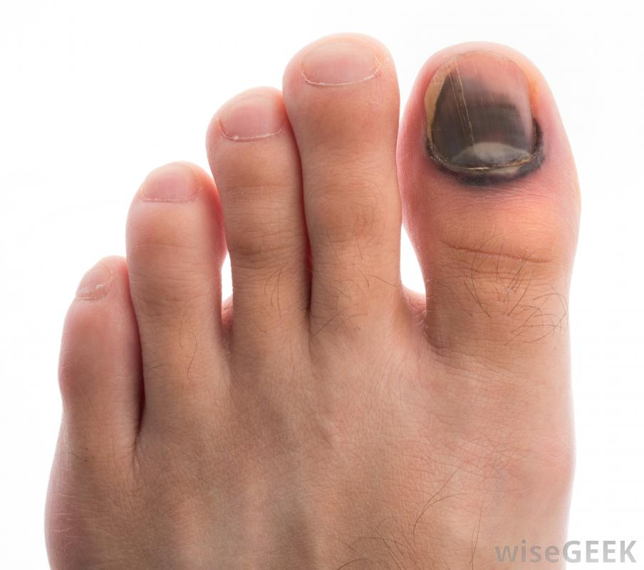 Dark spot under my toe nail | Melanoma Research Foundation