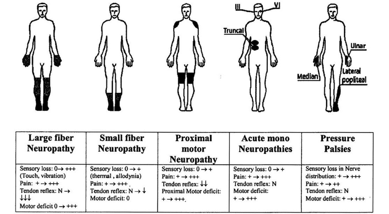 sensory polyneuropathy all you need to know neuropathy