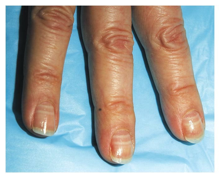 CyberMD: Finger... Incontinentia Pigmenti