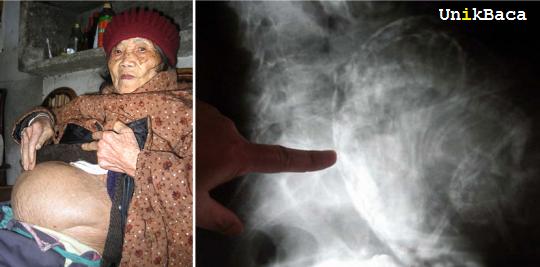 Nenek 60 Tahun Melahirkan Bayi Mumi
