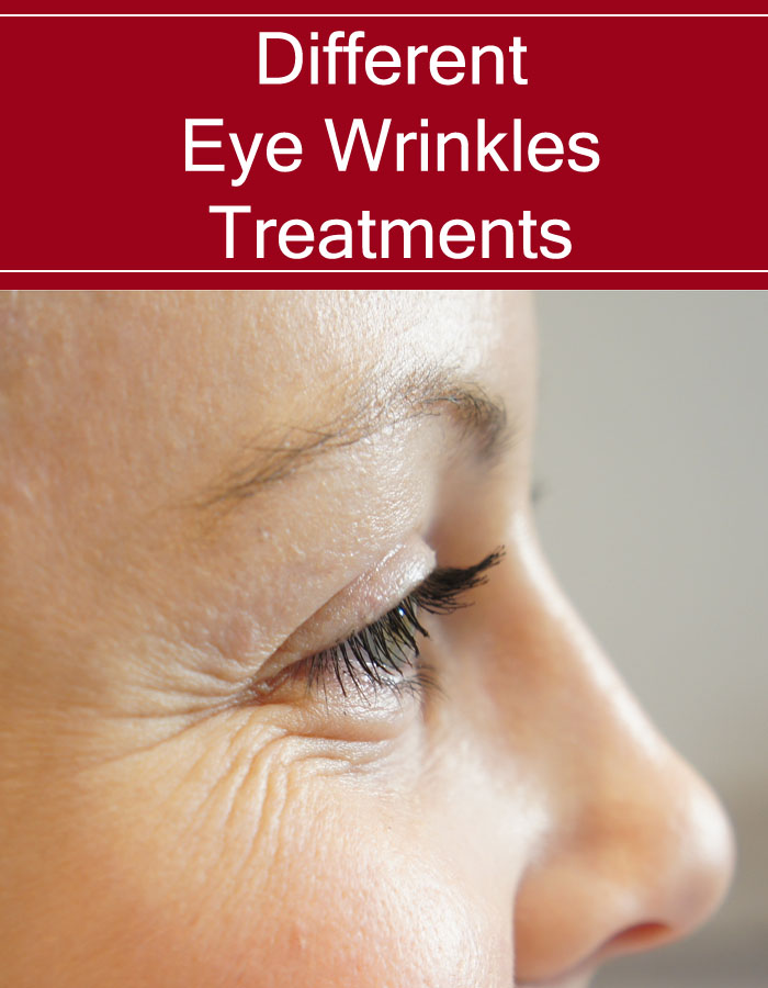 Different Eye Wrinkles Treatments